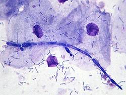 Схемы лечения урогенитальных инфекций - Диагностика кандидоза